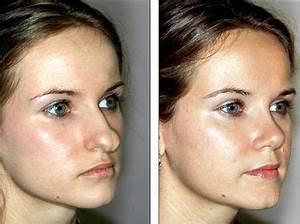 Стоит ли делать пластическую операцию (ринопластику) носа ...