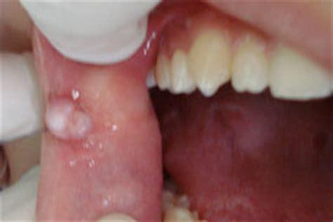 interieur de la bouche blanche la diapneusie du diagnostic au traitement 224 propos d un cas cas clinique