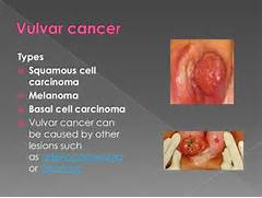 Condition affecting  Vulvar Cancer