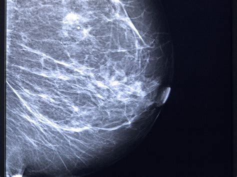 25 Breast Cancer Myths Busted Health