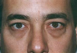 Bags Under Eyes And Allergies - creationtoday