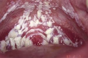 Definicion de yeast infection, symptoms of menu0027s ...