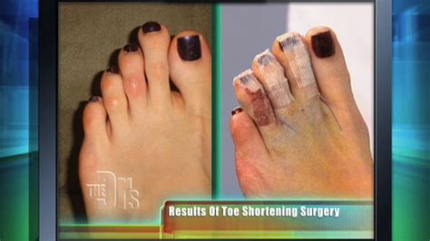 toe shortening surgery results  doctors tv show