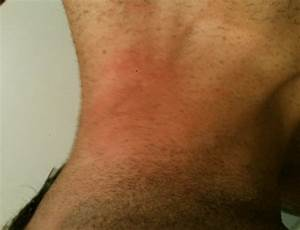 neck rashes causes - pictures, photos