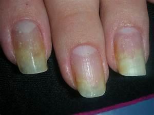 Отзывы о лаке от грибка ногтей офломил