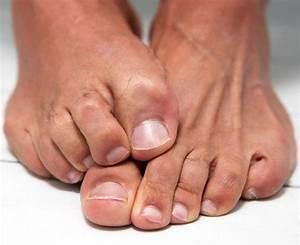 От чего бывает грибок на ногтях рук и ног