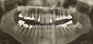 Symptome Dent De Sagesse : docteur sabine mares de metz dents de sagesse ~ Maxctalentgroup.com Avis de Voitures