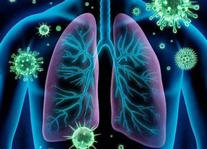 Bronquitis aguda: van de la mano tos productiva, fiebre y dificultad respiratoria Por