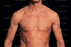 Surface Anatomy Of The Chest Of Caucasian Male