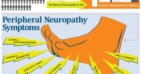 Peripheral Neuropathy  Foot Tips And Infographics. Cloud Storage For Home Users Sep Ira Limit. Champion Foundation Repair Art Schools In Ma. Virtual Edge Applicant Tracking. Google Adword Training Train Travel Insurance. Online Computer Repair Certification. I Want To Become A Counsellor. Certified In Supply Management. Orthopedic Surgery Job Urgent Care Chicago Il