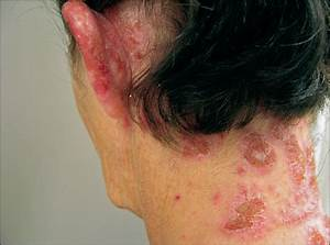Neutrophilic And Eosinophilic Dermatitis Caused By Contact