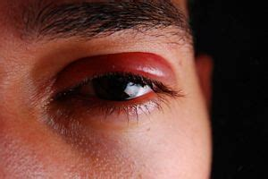 Herpes In The Eye Images Eye Herpes Pictures