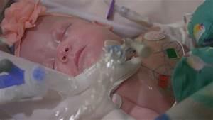 Preventing Preterm Births   Cincinnati Children's - YouTube