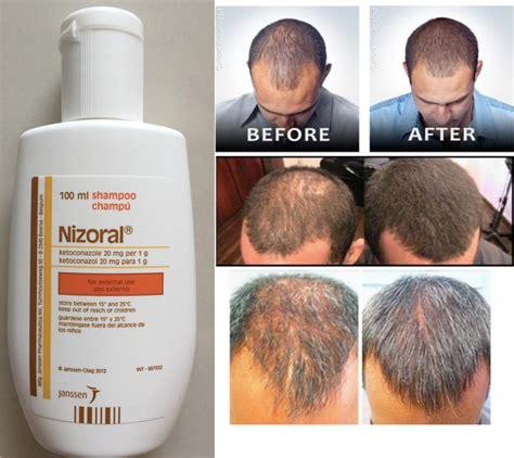 Shampoo ketoconazole hair loss