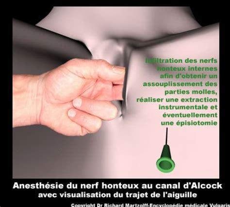 materiel de bureau image photo anesthésie du nerf honteux au canal d 39 alcock