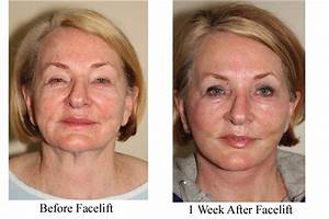 5 Incredible, non, surgical, facelift, options