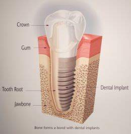 Diagram Of Right Rear Molar by Dental Tooth Loss And Consequences An Update