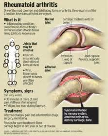 What: Rheumatoid arthritis is an autoimmune disease and a form of ...  Juvenile Rheumatoid Arthritis Rheumatoid Arthritis