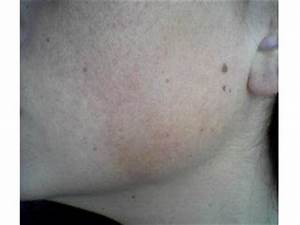 Keratosis Pilaris Pictures (Images, Photos)