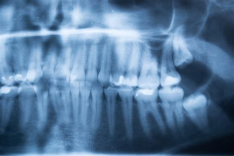 For instance, a regular wisdom tooth extraction costs $200 per tooth. Wisdom Teeth Removal Cost in NYC   Advanced Dental Arts NYC