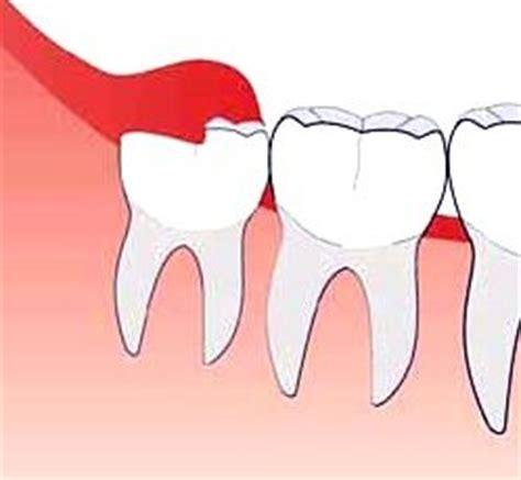 dentition der durchbruch der zaehne