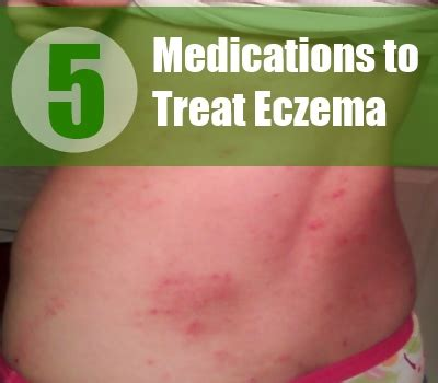 5 Drugs And Medications To Treat Eczema  Best Drugs For. Cheapest Online Colleges Per Credit Hour. Freelancer For Website Development. Ez Self Storage Lakewood Nj New Orleans Hvac. University Park Chiropractic. Ohsu Accelerated Nursing Program. Metro Pcs Phone Payment Plan. Echo Ultrasound Tech Salary Blue Heron Spa. National Beauty College Canton Ohio
