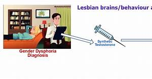 Transgender Brains  Effects Of Testosterone On Xx Female Brains