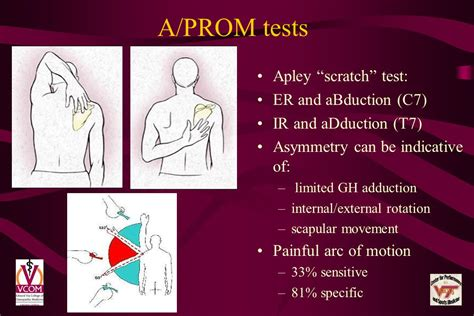Shoulder Syndromes Voma September Ppt Video Online Download
