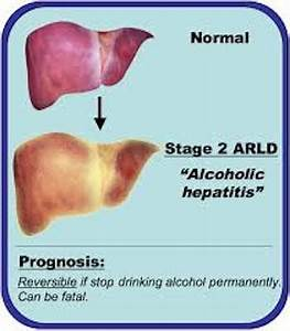 alchep2 - Living With Liver Disease