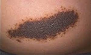 Pigmented Birthmarks Calgary AB - Birthmarks  Skin Cancer Birthmarks - pigmented