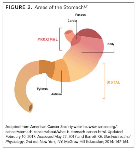 Proximal Stomach Cancer