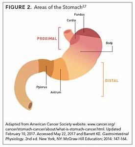 Gastric Cancer  Understanding Its Burden  Treatment