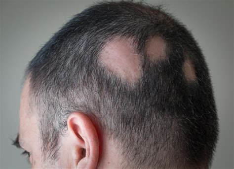 sudden hair loss in alopecia areata symptoms treatment and tips