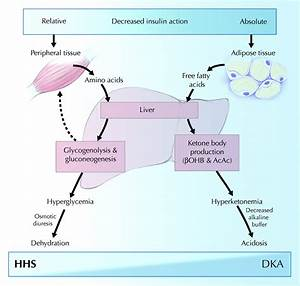 Diagnosis And Treatment Of Diabetic Ketoacidosis And The