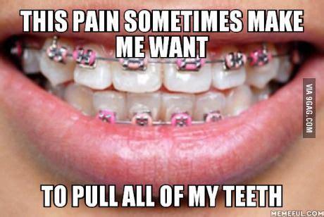 Braces Memes - best 25 braces humor ideas on pinterest braces problems braces and braces tips