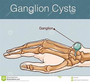 Ganglion Cartoons  Illustrations  U0026 Vector Stock Images