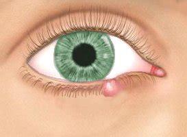 bouton al interieur de la paupiere l orgelet ce qu il y a 224 savoir un oeil deux yeux