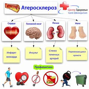 Сахарный диабет симптомы причины симптомы лечение и профилактика