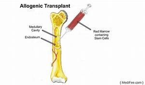 Bone Marrow Transplant: Treatment Options and Risks