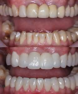 Teeth Crowns Before and After