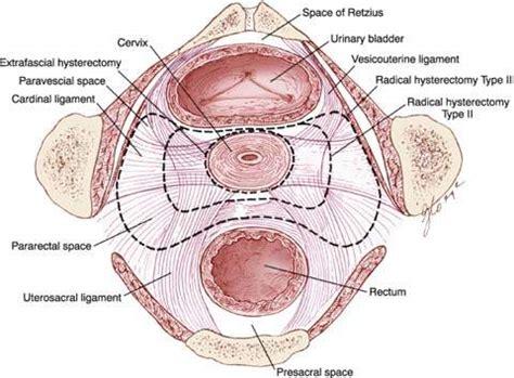 Cervical and Vaginal Cancer   Obgyn Key
