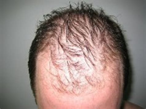 Minoxidil Shedding Phase Duration how does a minoxidil rogaine quot shed quot last regrow