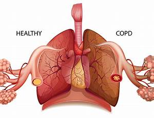 National Copd Awareness Month