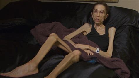 anorexic actress  weighs  pounds raises