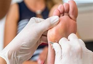 How To Get Rid Of Calluses On Your Feet  U2013 The Ultimate