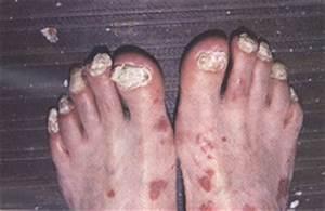 Лецитин в капсулах при псориазе