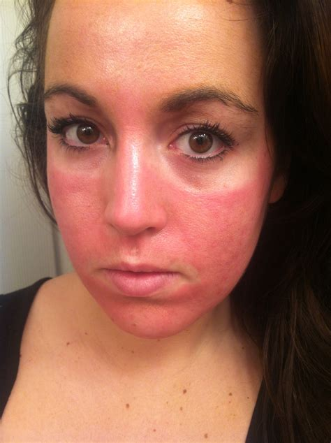 expect chemical peel  preppy leopard