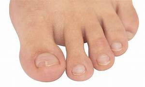 How To Cure Infected Ingrown Toenail At Home