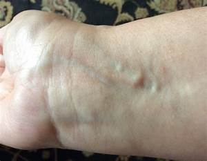 What Are These Lumps In My Wrist