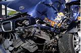 Images of Car Accident Whiplash Injury Claim